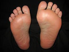 Swelling bottom toe